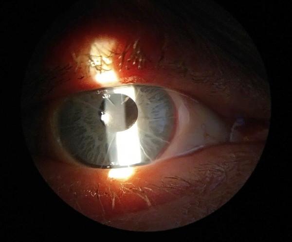 В Кирове 53-летнему мужчине впервые поставили имплант радужки глаза