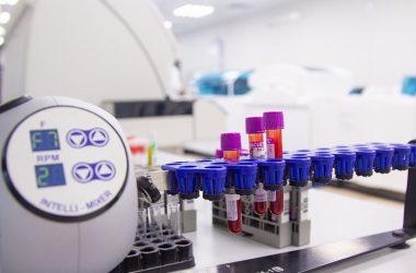В лаборатории Кировской областной клинической больницы объем исследований на COVID-19 увеличен в 1,5 раза